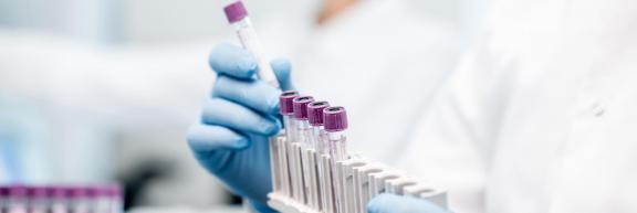 Priorisation des tests par RT-PCR - Covid 19